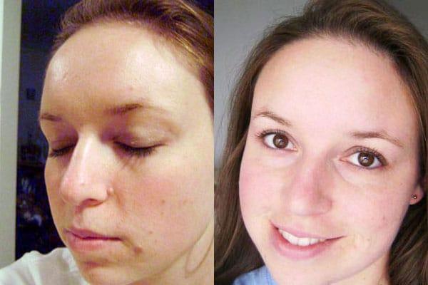 LeaLea Creme: Muttermal und Leberflecken selbst entfernen?