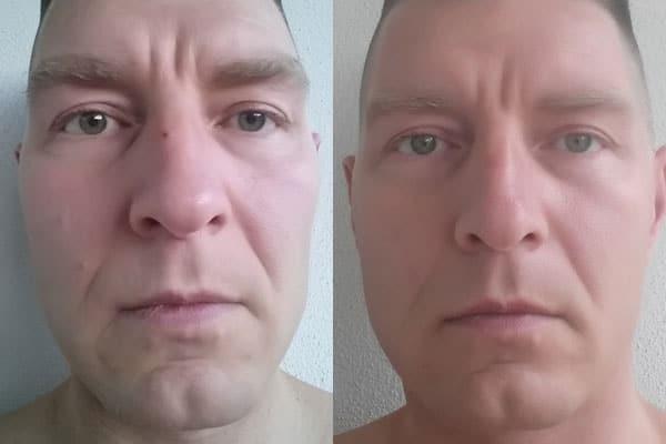Ergebnisse Vorher/Nachher - LeaLea - Natürliche Creme zur